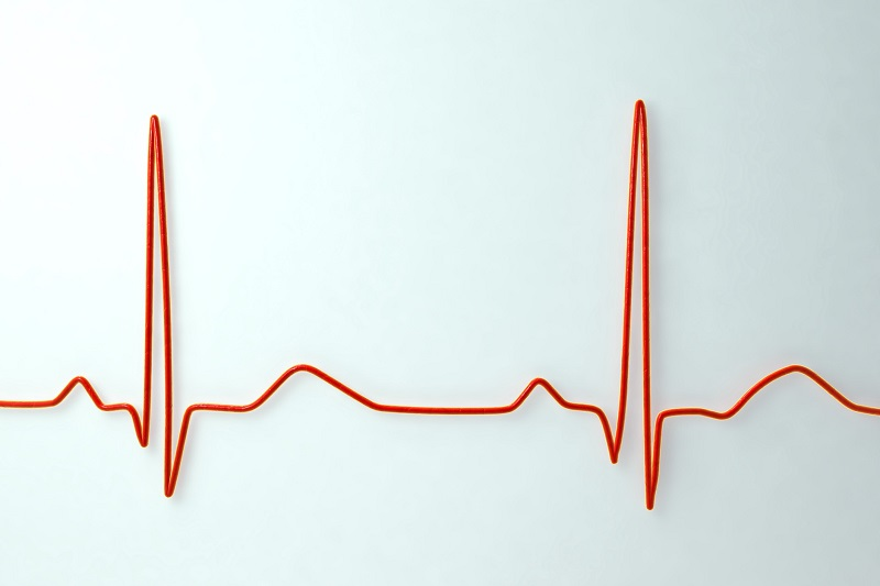 مراقبت های بعد از انجام نوار قلب