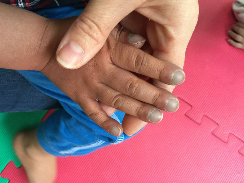 کبودی دست یکی از علائم بیماری سیانوز