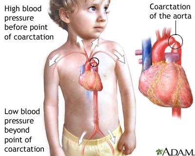 کوارکتاسیون در کودک