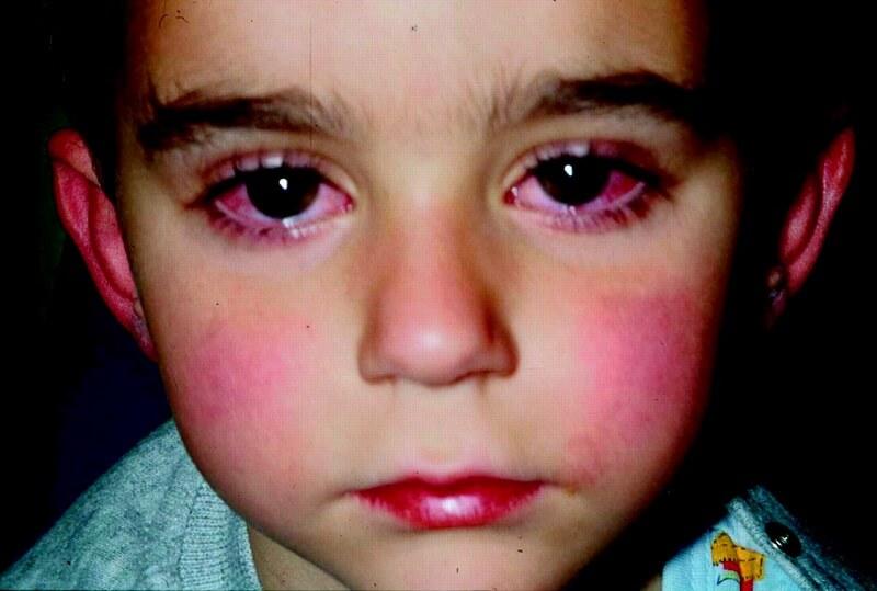 قرمزی چشم در کاوازاکی