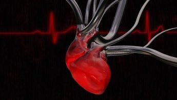 رگ اضافه قلب در نوزادان