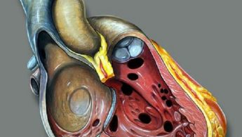 سوراخ قلب جنین در اکوی قلب ( سوراخ بین بطنی )
